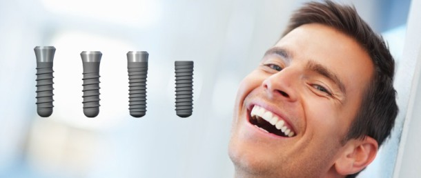 Pełny uśmiech – postaw na implanty!