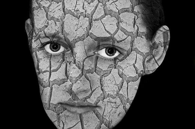 Choroby skóry przyczyną zaburzeń psychicznych?