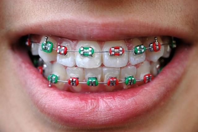 Z wizytą u ortodonty – zgryz u dzieci pod kontrolą