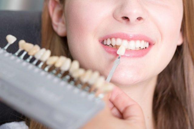 Wybielanie zębów – nie rób tego w domu!