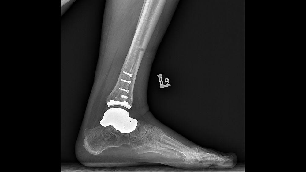 Implant-hybrydowy-stawu-skokowego-w-lewej-nodze
